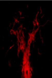Cellule ependimali lasciano il centro della spina dorsale per correre verso la zona del trauma. credits: Hanna Sabelström